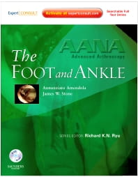 AANA Advanced Arthroscopy: The Foot and Ankle