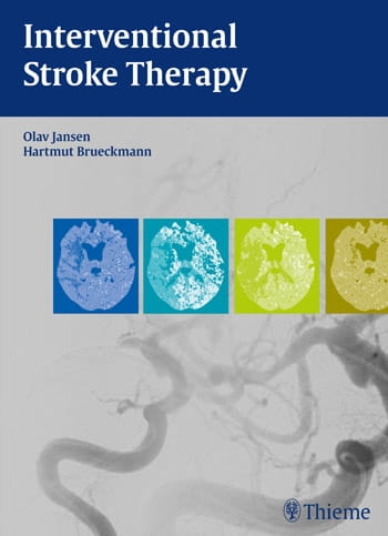 Interventional Stroke Therapy.jpg