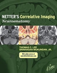 Netter's Correlative Imaging Neuroanatomy, 1st Edition.jpg